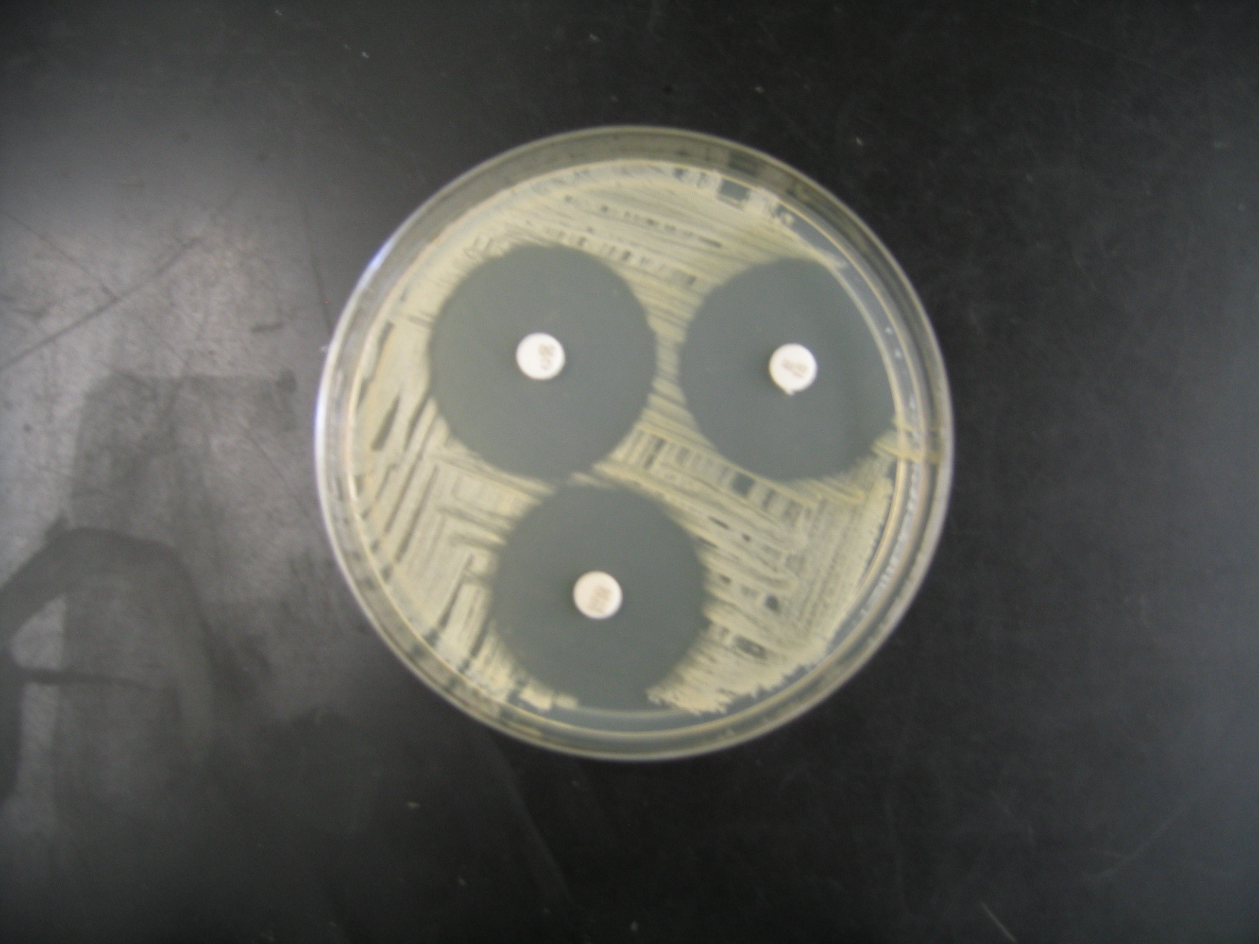 results of kirby bauer test on s epidermidis Antibiotic sensitivity, author: myriam  a procedure called the kirby-bauer test can be  obtain 2 plates and the cultures of e coli and s epidermidis.